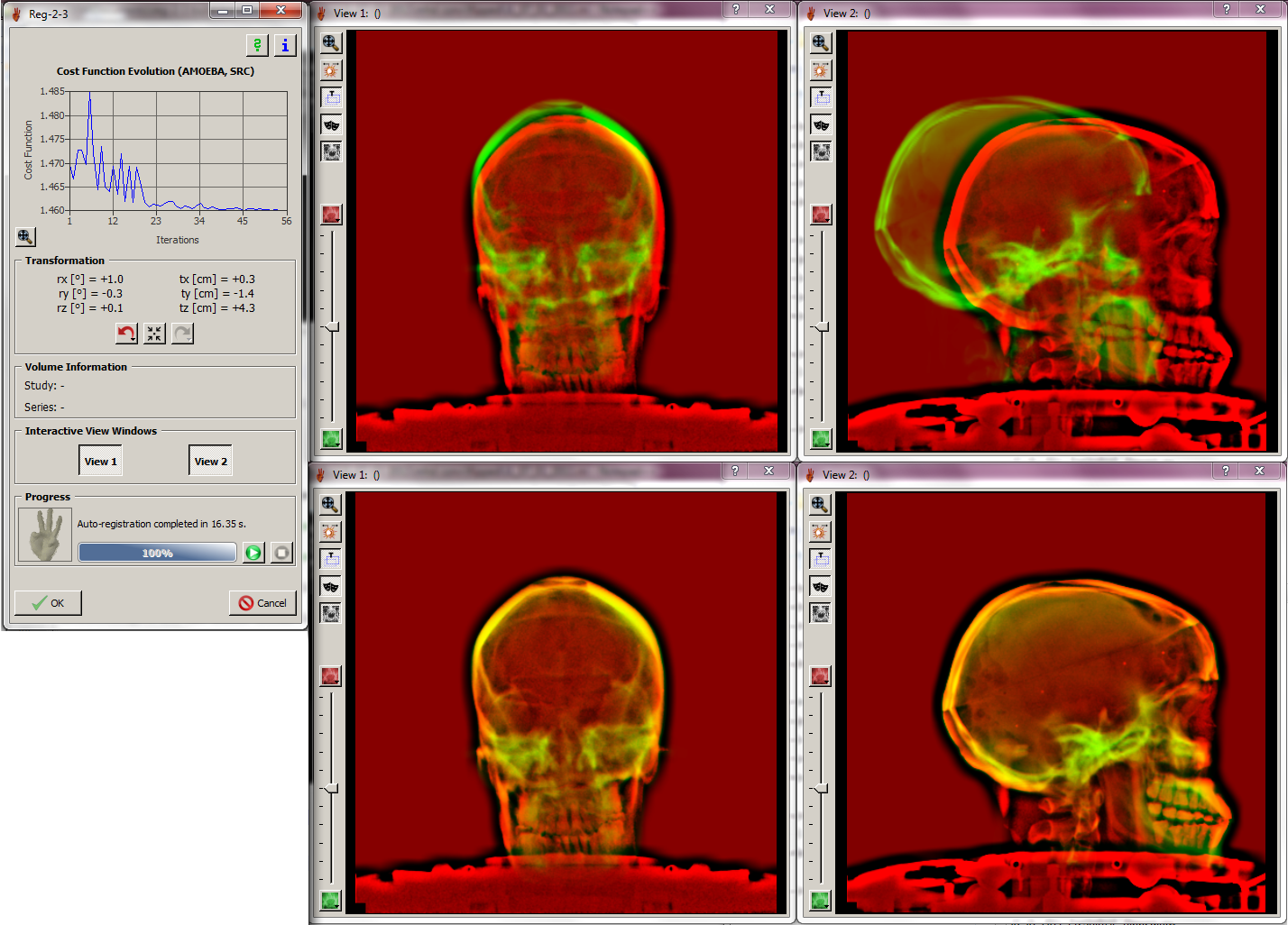 2D/3D Imaging
